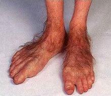 Hobbit feet 2